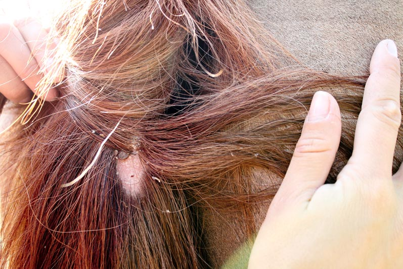 A tick attached to a scalp under reddish-brown hair
